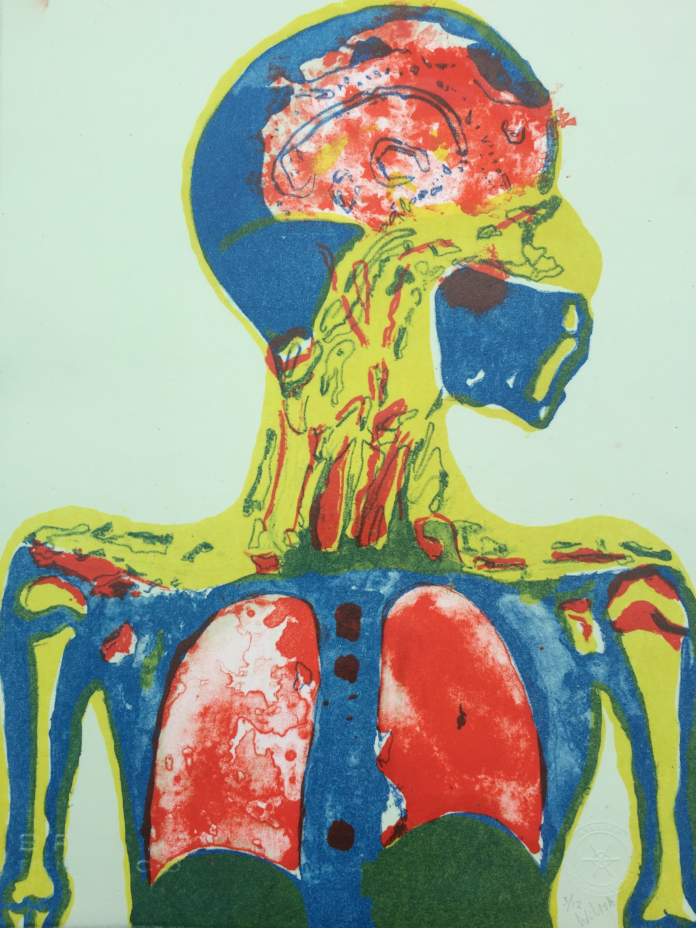 2020 COVID related MR lithography where lungs and teh brain are infected